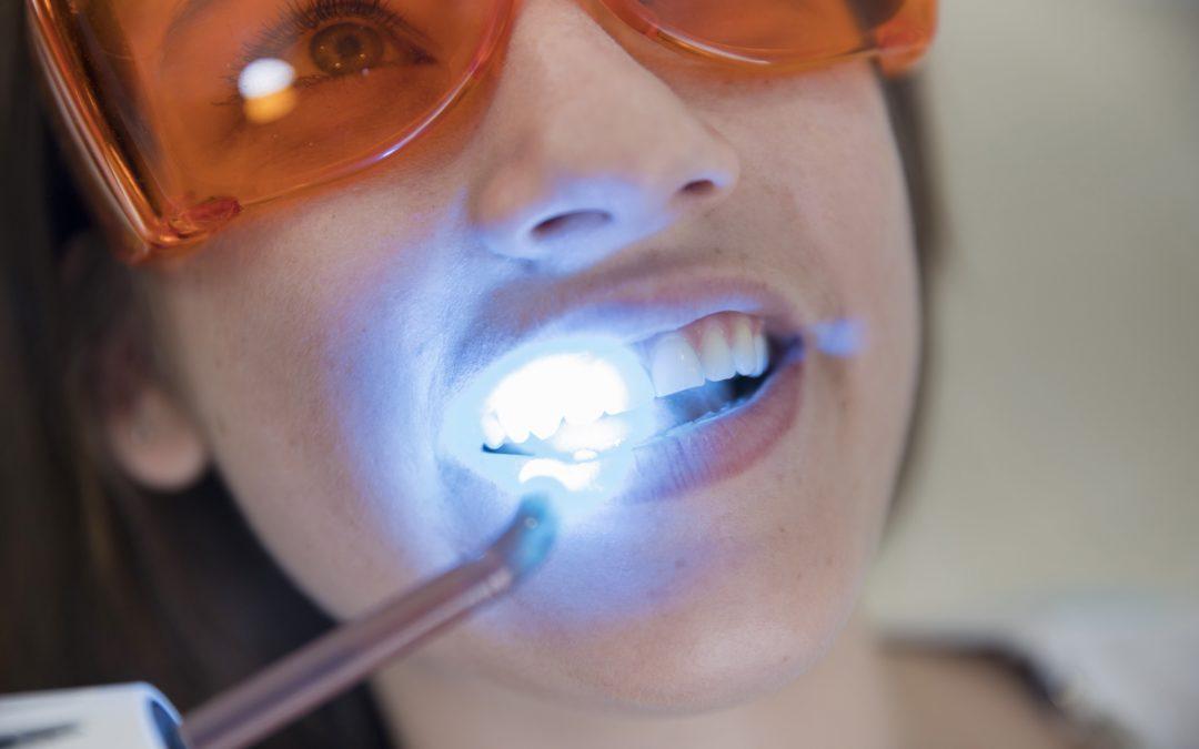 Blanqueamiento dental para lucir de una sonrisa perfecta