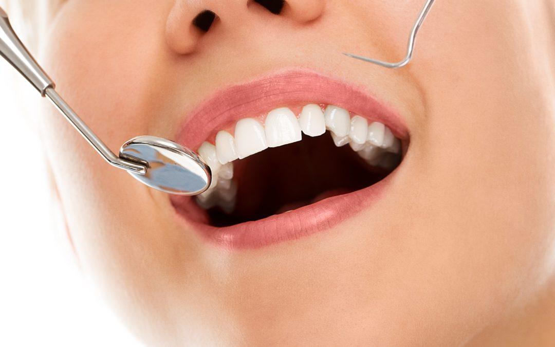 ¿Cómo debemos tratar la caries dental?